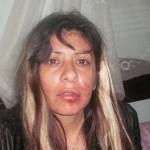 Dirigente social de Ezeiza, golpeada por La Cámpora