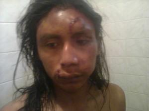 Abelardo Díaz, hijo de Félix, apaleado por una patota.